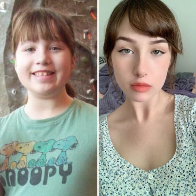 """<p class=""""Normal"""">""""9 tuổi và 19 tuổi. Đây là sự phát triển và hoàn thiện của các góc mặt"""".</p>"""