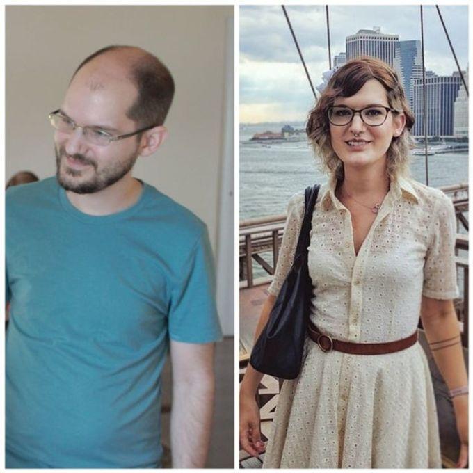 <p>18 tháng sau liệu pháp tiêm hormone nữ, tôi trở nên xinh đẹp và quyến rũ hơn.</p>