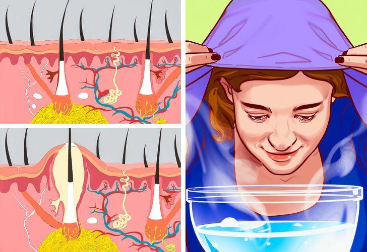 Lợi ích khi xông hơi da mặt mỗi tuần - 3